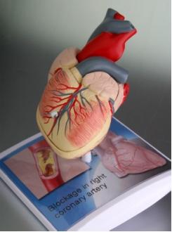 Szív modell